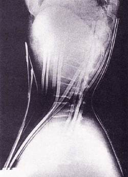 Cathy J's side view. On the left, X-ray clearly shows lengthening of space between spinal rings and midified rib position. Uncorseted photo on right shows outer body modification of her torso.